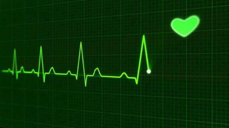 EKG-Grün