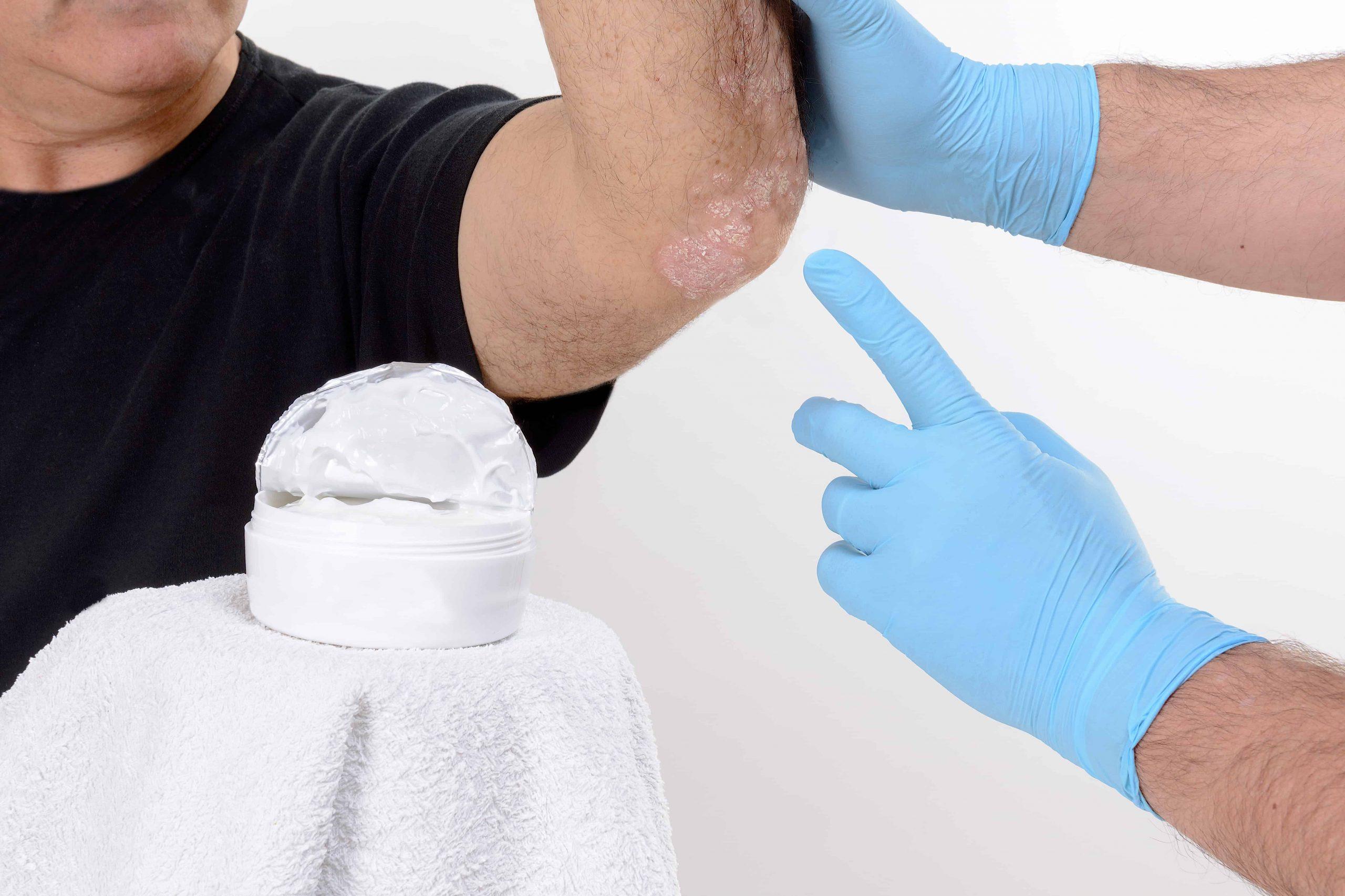 Trockene Ellenbogen – Erfolgreiche Methoden und Wirkungen