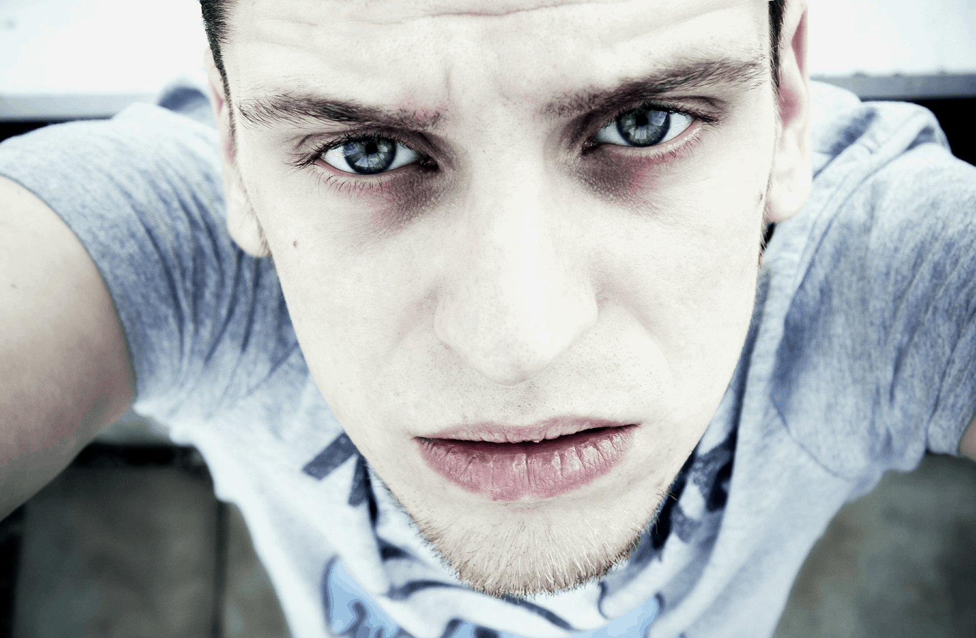 Dunkle Augenringe: Ursachen und Behandlungsmethoden