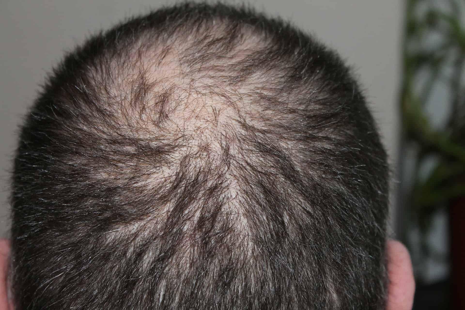 Kreisrunder Haarausfall: Ursachen und effektive Lösungen