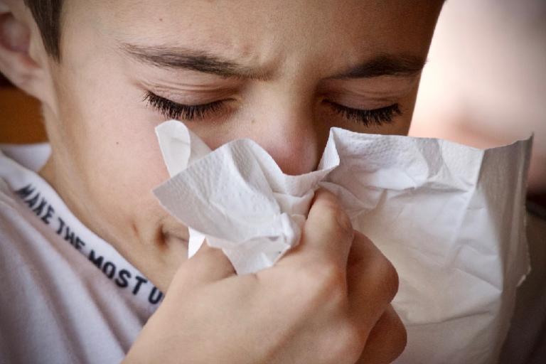 flouride gesichts allergie